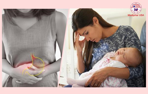 rối loạn tiêu hóa sau sinh